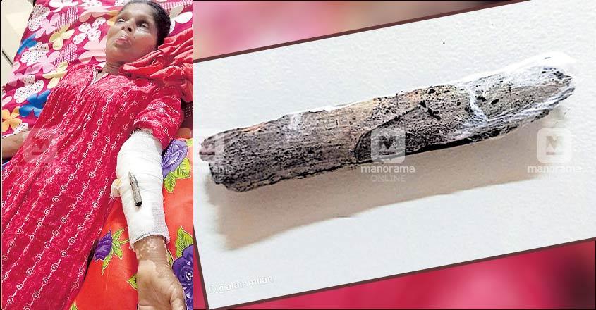 Splinter found in stitches on 60-year-old's hand