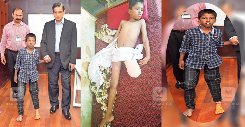 Artificial leg gives a new lease of life for boy
