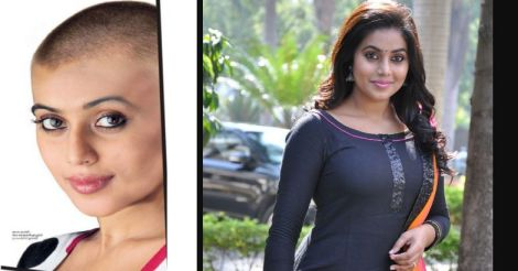 Here's the 'bald' truth behind Shamna Kasim's decision to go hairless