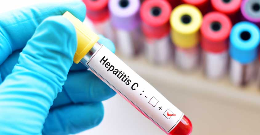 What to do if diagnosed with hepatitis B and C?