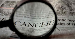 This breakthrough discovery can transform prostate cancer treatment