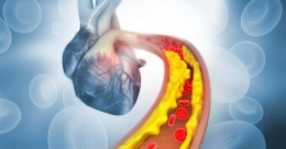 Here is a drug that may reduce 'bad' cholesterol by half in high risk patient
