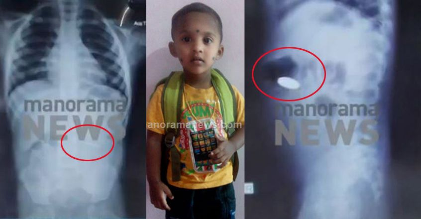 Three-year-old dies after swallowing coin, Health Minister orders probe