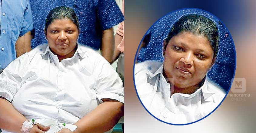 Woman, weighing 135kg, undergoes bariatric surgery in Alappuzha